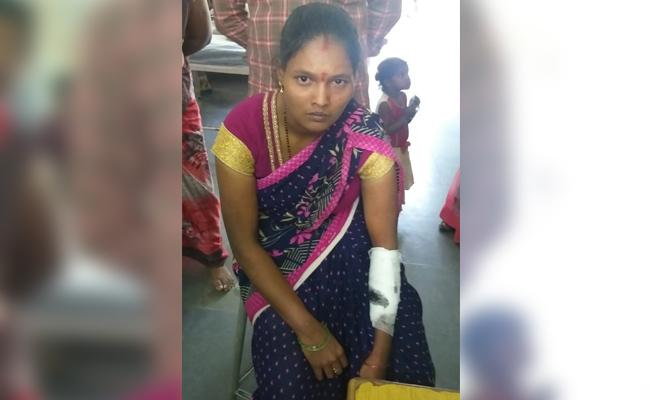 Wife Cut Hand While Husband Beat in Anantapur - Sakshi