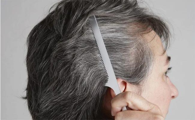Scientists Discover Why Stress Turns Hair White - Sakshi