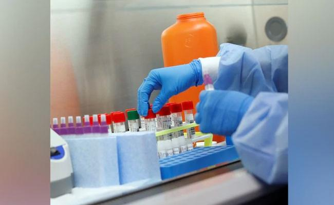 Karnataka Orders Corona Rapid Testing Kits At Rs 795 Each - Sakshi