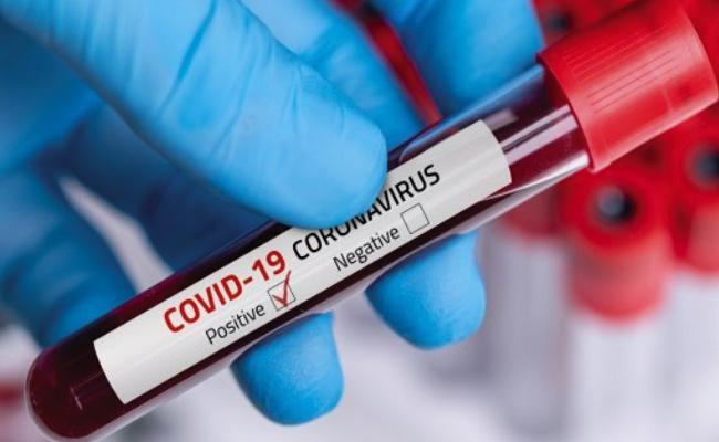 Coronavirus 4 Positive Cases Reported In Green Zone Yadadri Bhuvanagiri - Sakshi