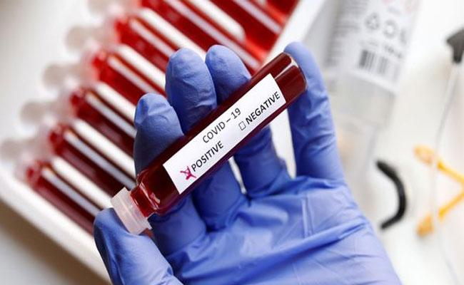 coronavirus cases Rising In Mancherial District - Sakshi