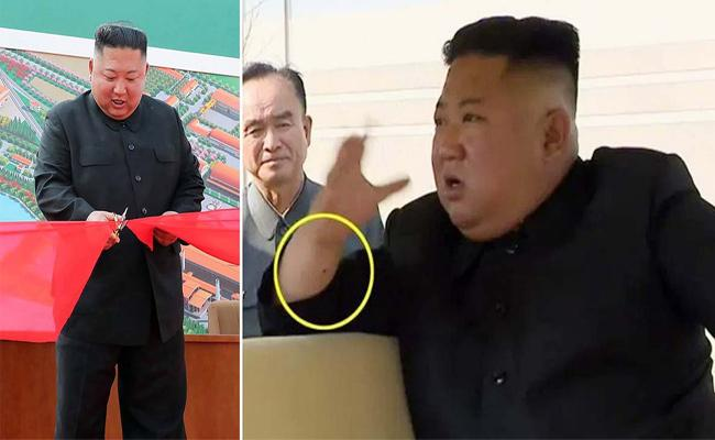 Kim Jong Un Resurfaces With Mysterious Mark On Right Hand Wrist - Sakshi