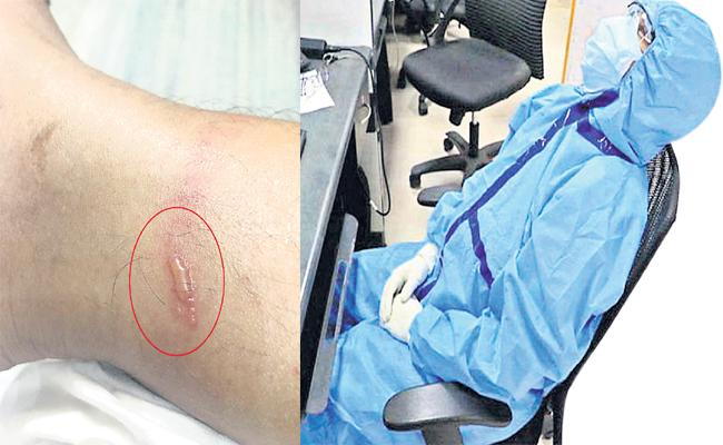 Doctors Suffering Skin Allergy With PPE Kits in Summer - Sakshi