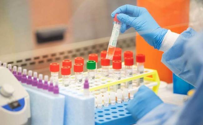 India Approves Remdesivir For Emergency Use Of Coronavirus Patients - Sakshi
