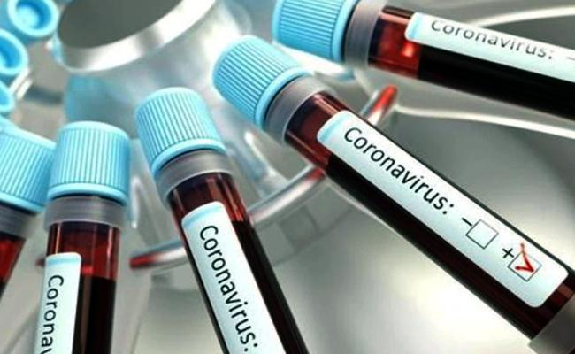 Andhra Pradesh Reports New 9996 Coronavirus Positive Cases - Sakshi