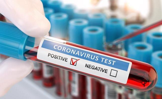 6923 New Corona Positive Cases Recorded In AP - Sakshi