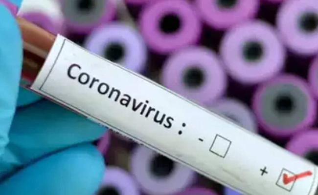 625 New Corona Positive Cases Reported In AP - Sakshi