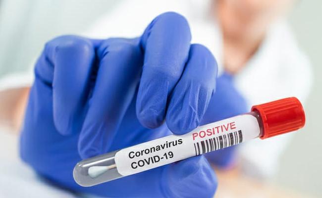 114 New Coronavirus Positive Cases Recorded In AP - Sakshi
