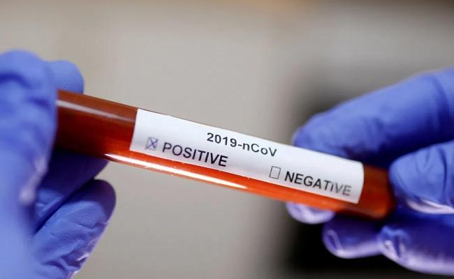 56 New Coronavirus Positive Cases Recorded In AP - Sakshi