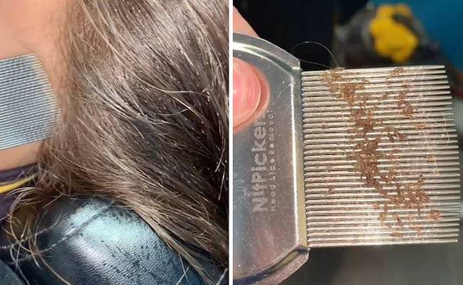 Insane Of Lice Found From Young Girls Hair In Australia - Sakshi