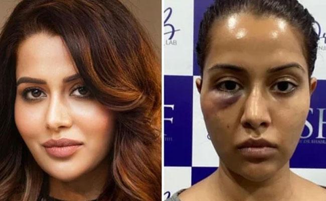 Tamil Actress Raiza Wilson Undergo Dermatological Procedure, It Goes Wrong - Sakshi