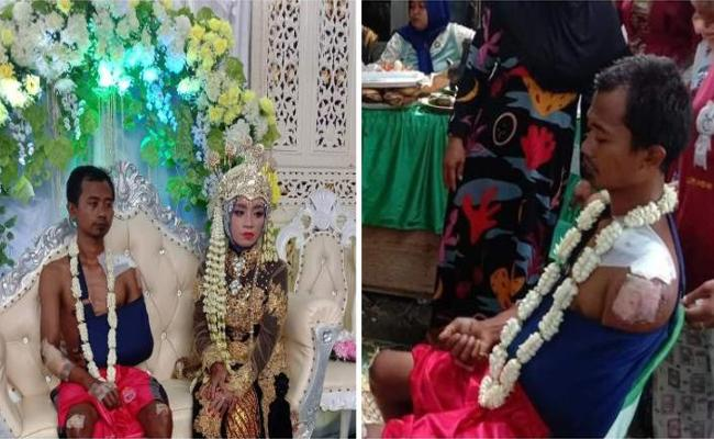 Indonesia Injured Groom Wears Just A Pair of Shorts on His Wedding Photos Go Viral - Sakshi
