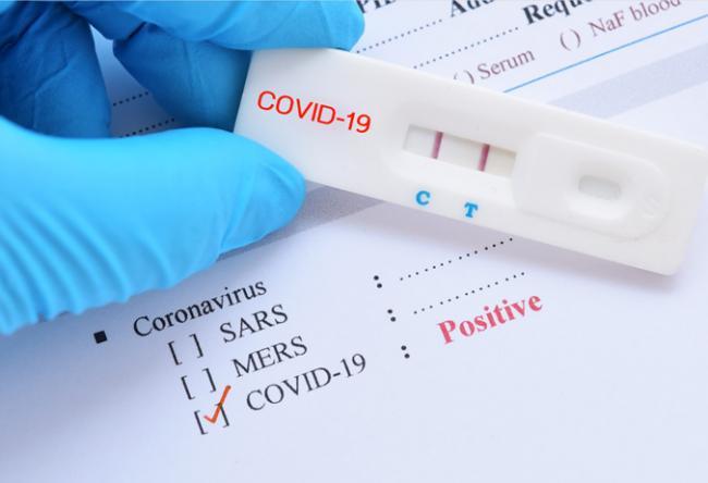 22018 New Coronavirus Positive Cases Recorded In AP - Sakshi