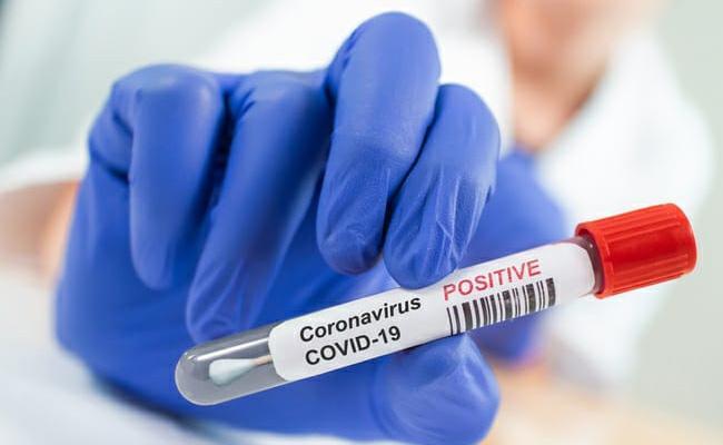 22517 New Coronavirus Positive Cases Recorded In AP - Sakshi