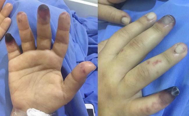 Experts Warns That Covid-19 Complications Can Lead To Gangrene Risk - Sakshi