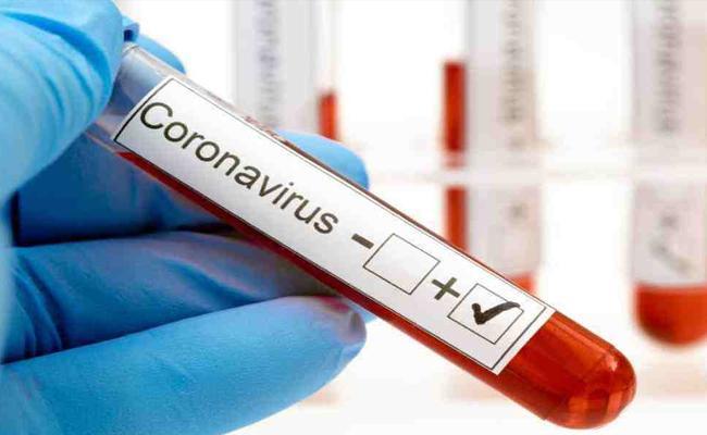 18767 New Coronavirus Positive Cases Recorded In AP - Sakshi