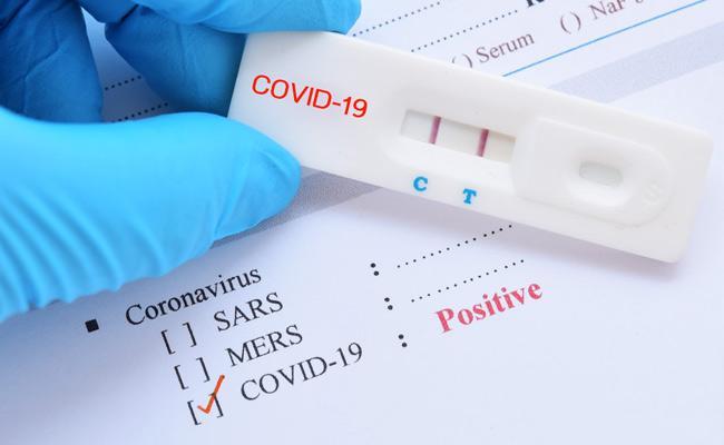 Andhrapradesh New Coronavirus Positive Cases 24 May - Sakshi