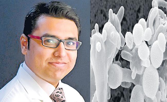 Dr. Vivek Praveen Dave Comments On White Fungus Treatment - Sakshi