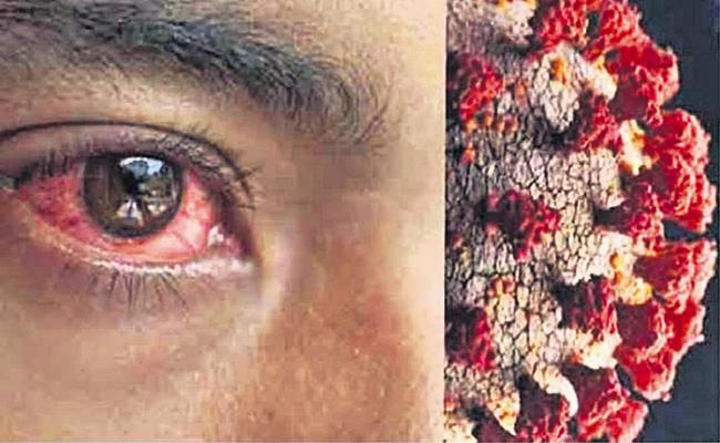252 cases of black fungus In AP - Sakshi