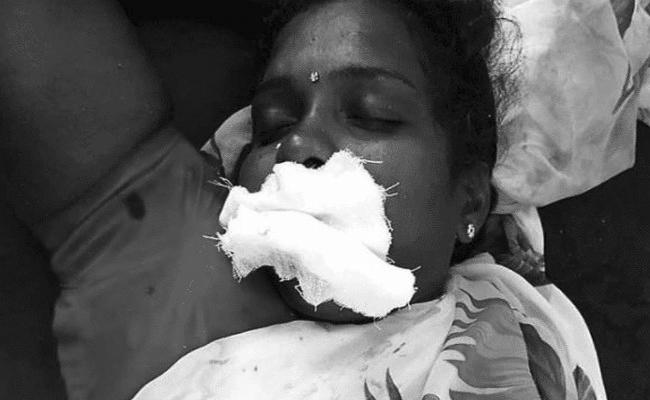 Women Cuts Off Her Tongue For DMK Victory In TamilNadu - Sakshi