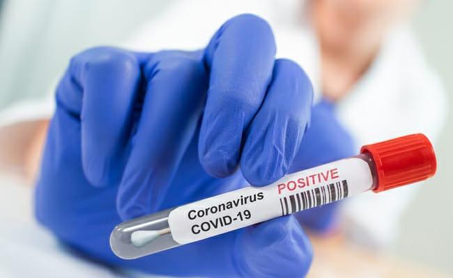 13400 New Coronavirus Positive Cases Recorded In AP - Sakshi