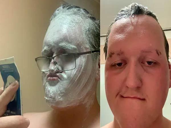 Australia Man Applied Hair Removal Mistaking That A Shaving Cream - Sakshi