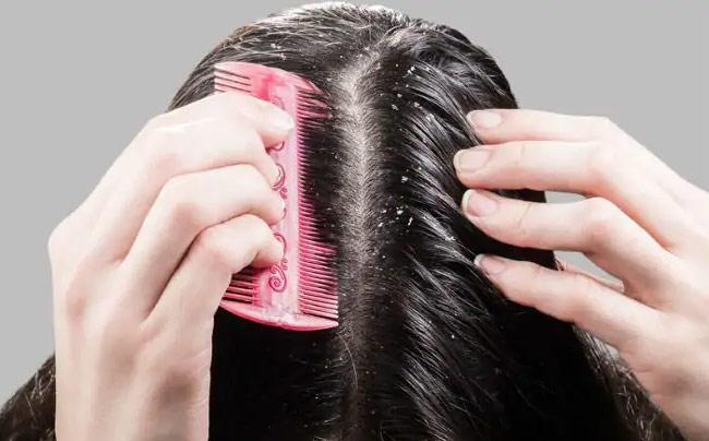 How To Get Rid Of Dandruff At Home - Sakshi