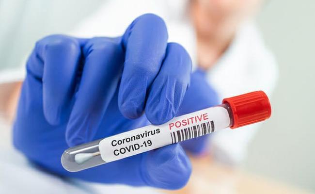 New Coronavirus Positive-cases Recorded june 19 - Sakshi