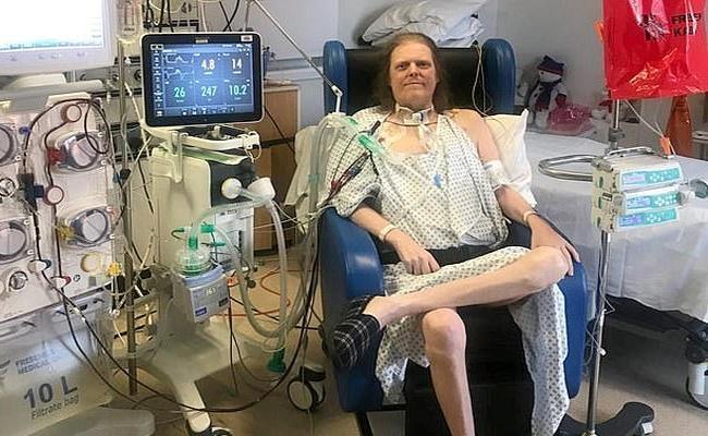 UKs Longest Suffering Covid Patient Jason Dies - Sakshi