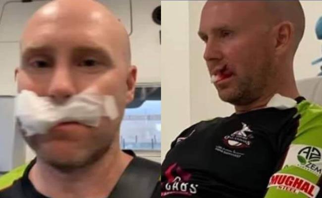 Australian Wicket Keeper Ben Dunk Injured Receives Seven Stitches - Sakshi