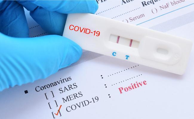 Coronavirus: 767 New Covid Cases Registered In Telangana - Sakshi