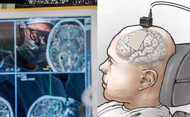 UCSF FB Research Neuroprosthesis Restores Words To Man With Paralysis - Sakshi
