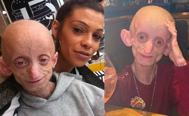 Benjamin Button Disease UK Teen Ashanti Smith Passed Away with Rare Syndrome - Sakshi