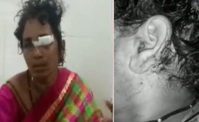 Chittoor: Tiger Attack On Couples Near Narayanavanam Mandal - Sakshi