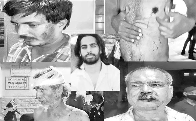 Rowdy Sheeter Sameer Attacks persons In Habibnagar - Sakshi