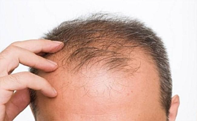 How To Postpone Baldness With Food And Treatment - Sakshi