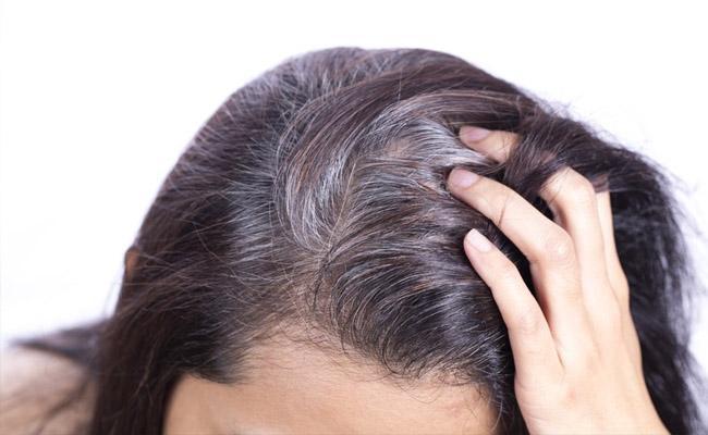 Columbia University Elife Journal Said Grey Hair Become Black If You Control Stress - Sakshi