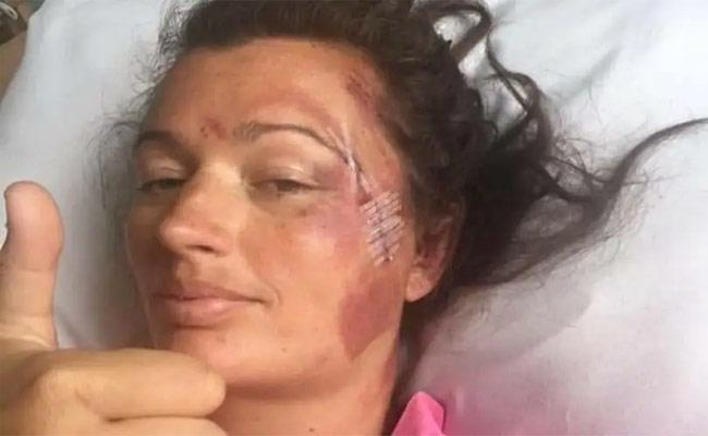 Woman Falls 60 Feet Off Cliff Edge Onto Rocks And Still Survives In UK  - Sakshi
