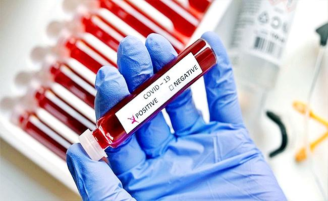 AP Government Released The Bulletin On Corona Virus - Sakshi