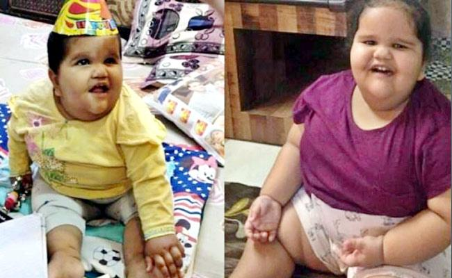 Bariatric surgery on two year-old weighing 45 kg - Sakshi