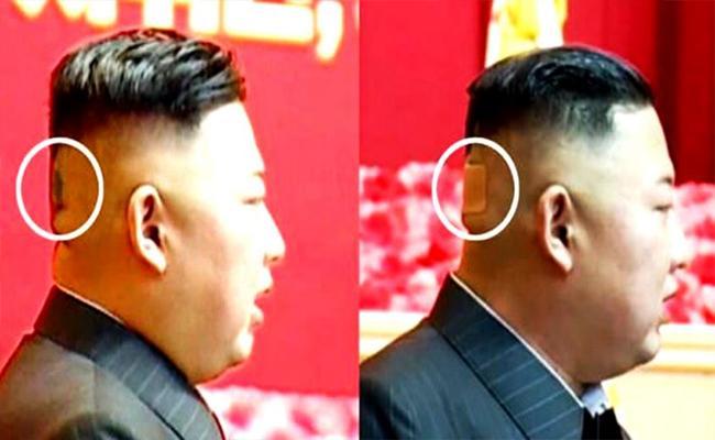 Kim Jong Un Bandage And Spots On Head Health Mysteries - Sakshi