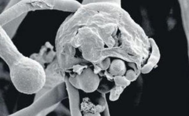 Black fungus Most feared Virus Andhra Pradesh - Sakshi