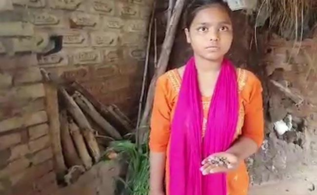 Rocks Coming Out With Tears In 15 Years Old Girl Left Eye, From Kannauj UP - Sakshi